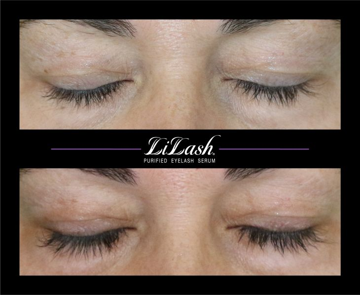 LiLash Purified Eyelash Serum - before and after