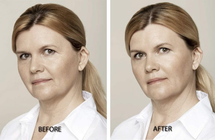 ba Restylane Skin Boosters before and after treatment