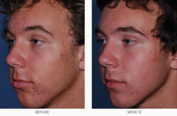 CLENZIderm M.D. Before &​ After