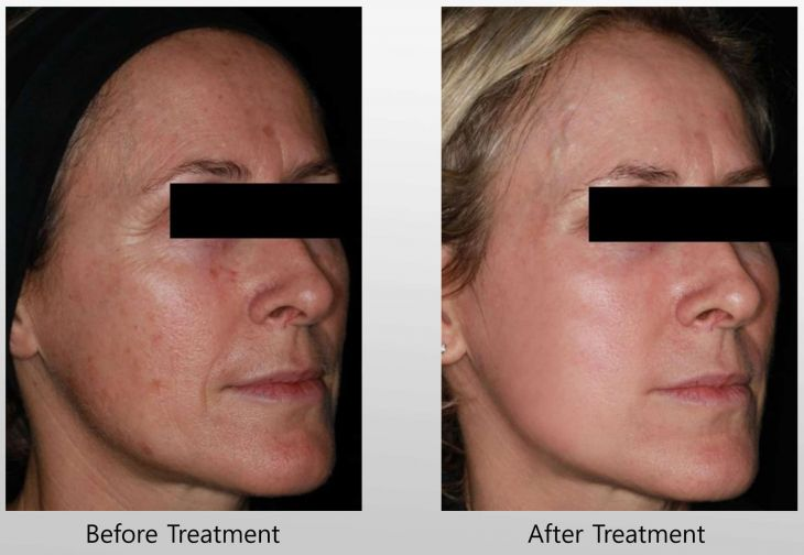 Before and After Infini treatment