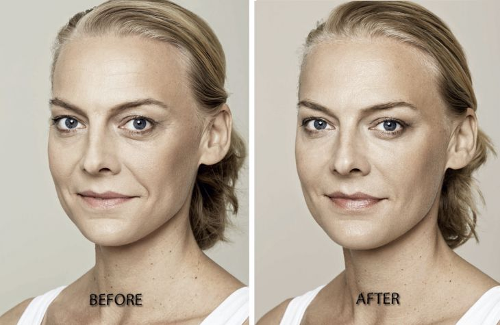 Restylance Skin Booster before and after treatment